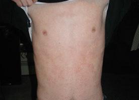 Causes of a Full Body Rash