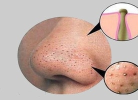 Treatment for Blackheads on Nose